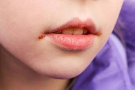 Impétigo sur la bouche d'un enfant.