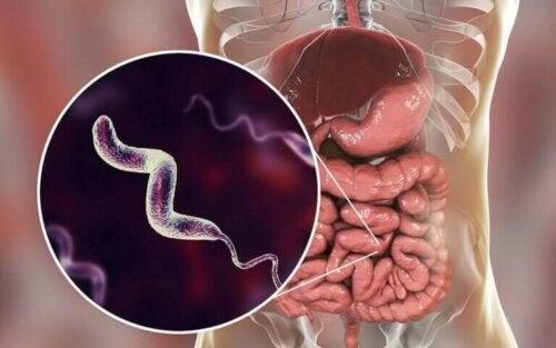 Infections à Campylobacter : ce qu'il faut savoir
