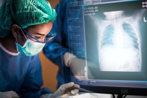 Transplantation pulmonaire : tout ce qu'il faut savoir
