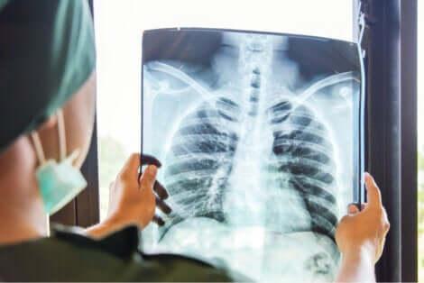 Radiographie des poumons.