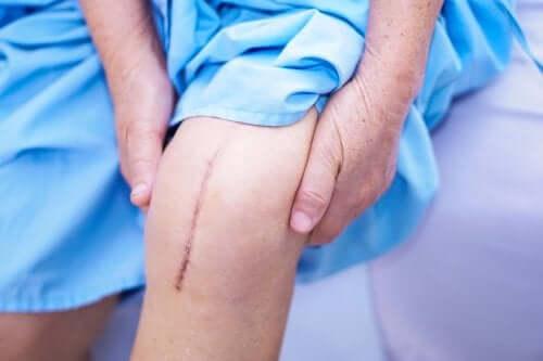Les différents types de cicatrisation