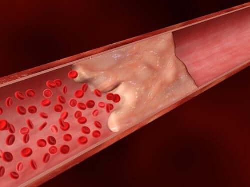 Calcium dans les artères