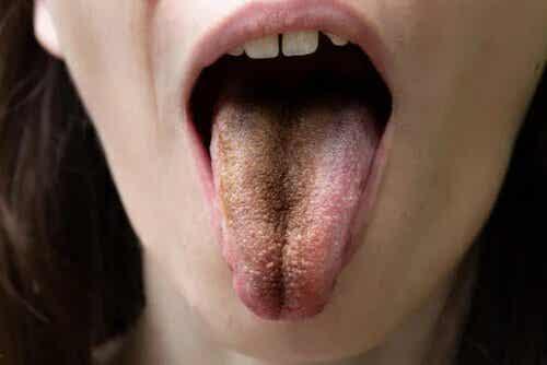 Langue poilue noire : causes, symptômes et conseils