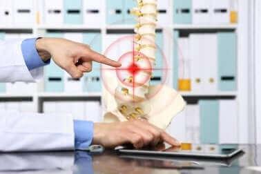 Un médecin pointant une hernie discale.