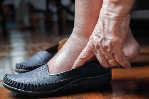 5 clés pour les jambes gonflées par la chaleur
