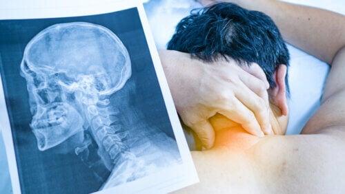 Radiographie, douleurs cervicales.