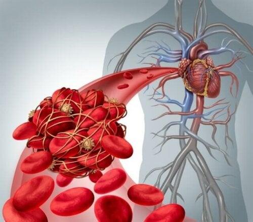 Schéma d'un caillot sanguin.