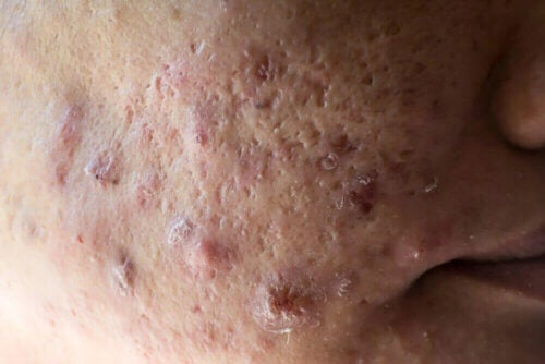 Une personne souffrant d'acné sévère.