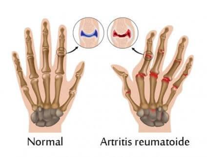 Schéma de mains, normale et souffrant d'arthrite.