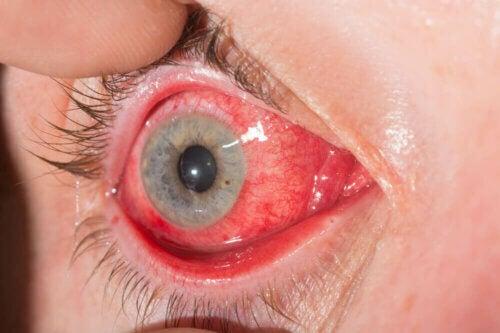 Un oeil atteint de conjonctivite.