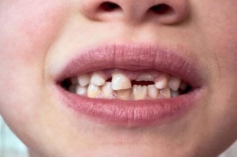 Dents de lait d'un enfant.