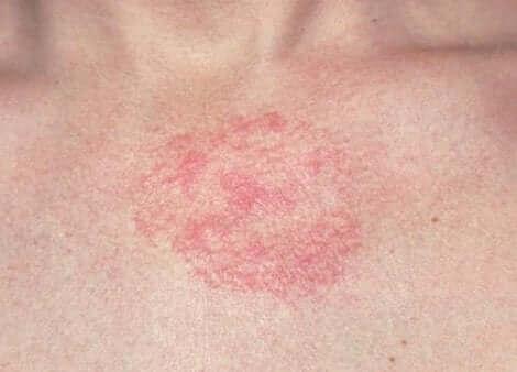Une dermatite sur la peau.