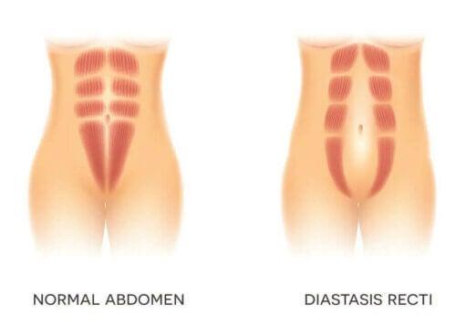 La diastase abdominale.