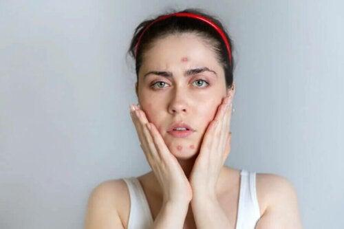 alimentation et l'acné sont elle vraiment liées ?