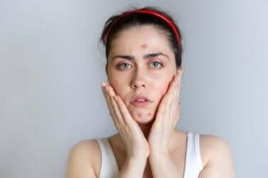 Une femme avec de l'acné.