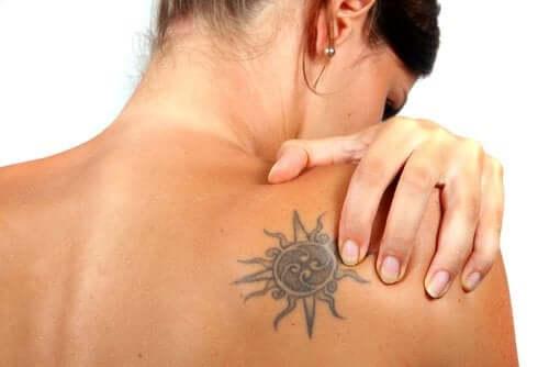 Est-il possible d'éliminer les tatouages ?