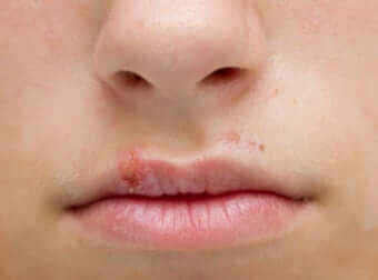 Bouton d'herpès sur le bord de la lèvre supérieure.