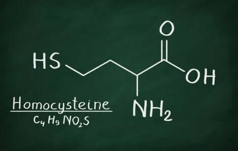 Formule chimique de l'homocystéine.