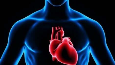 Insuffisance cardiaque chez une personne.