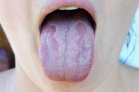Les maladies de la langue.