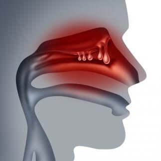 Des polypes nasaux.