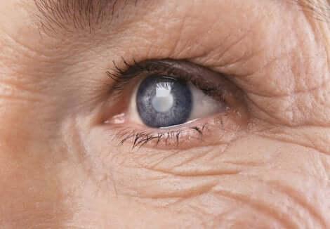 Gros plan sur un oeil bleu.