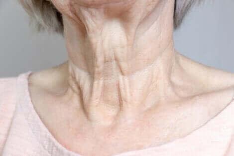 Les rides au cou d'une femme.