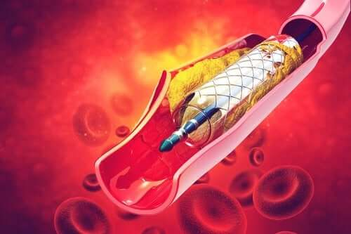 Qu'est-ce qu'un stent et à quoi sert-il ?