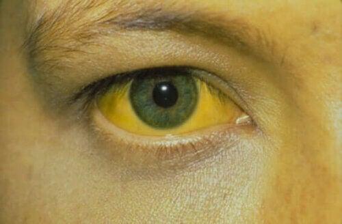 Un symptôme de l'hépatite D.
