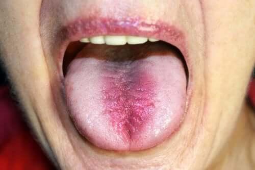 Syndrome de la bouche brûlante