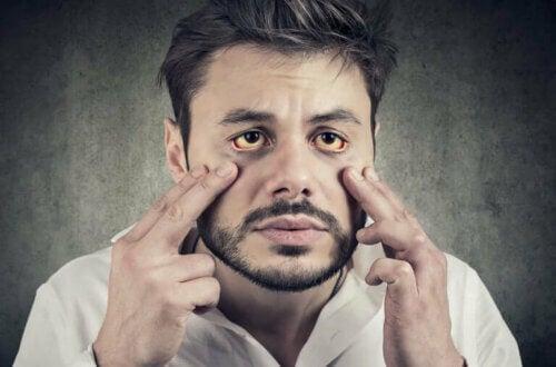 Syndrome de Gilbert : symptômes et traitement