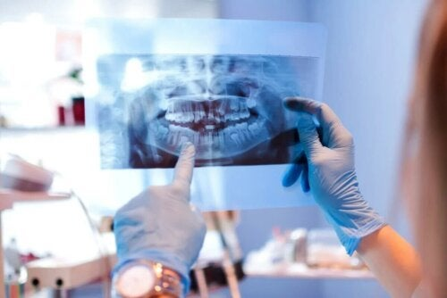 Etude avant de poser une prothèse sur implants dentaires