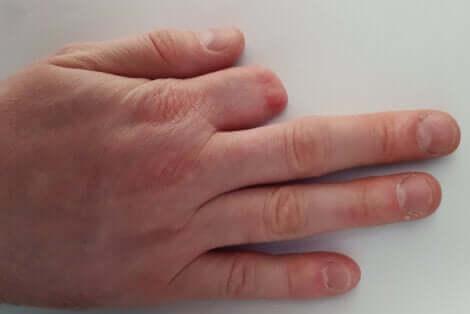 Amputation d'un doigt.