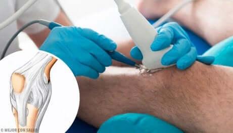 Arthroscopie du genou.