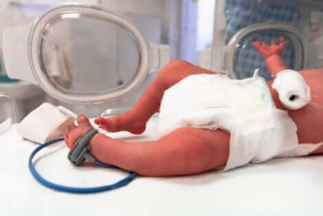 Un bébé prématuré.