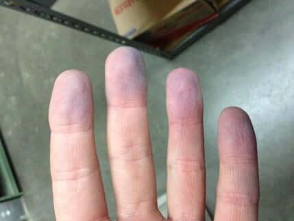 Des doigts avec cyanose.