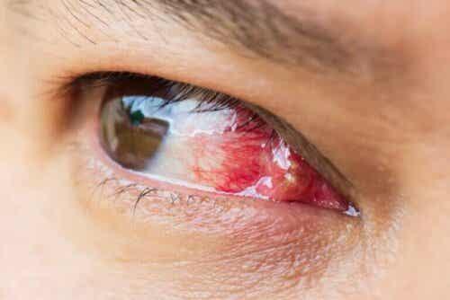 Excroissance sur les yeux : qu'est-ce que c'est et pourquoi apparaît-elle ?