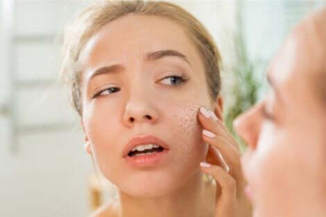 Une femme avec la peau du visage sèche.