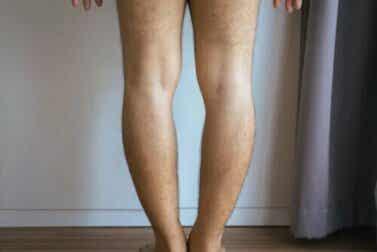 Genu varum ou jambes arquées : pourquoi se produit-elle et comment est-elle traitée ?