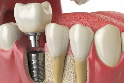 Prothèse sur implants dentaires mise en place