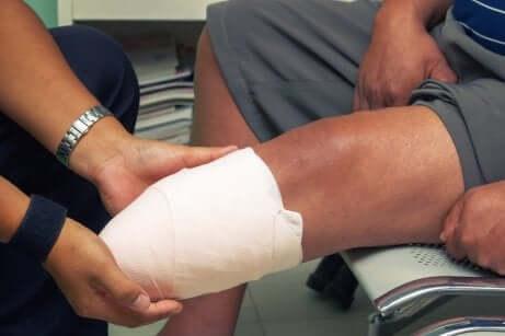 Une jambe amputée.