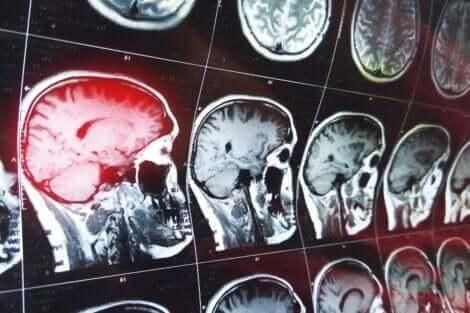 Imagerie cérébrale.