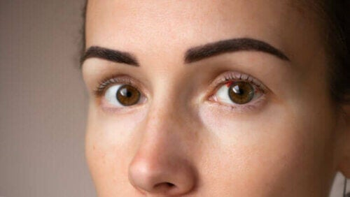 Taches rouges sur les yeux : pourquoi se produisent-elles ?