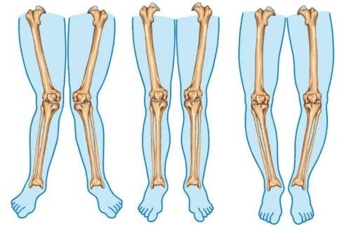 Les types de jambes.