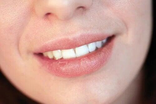 Pourquoi avez-vous les lèvres sèches ?