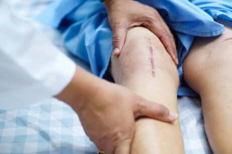 Une opération du genou.