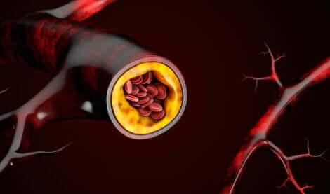 plaques d'athérome dans les vaisseaux sanguins.