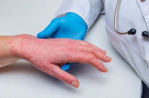 Psoriasis et maladie coronarienne : comment sont-ils liés ?