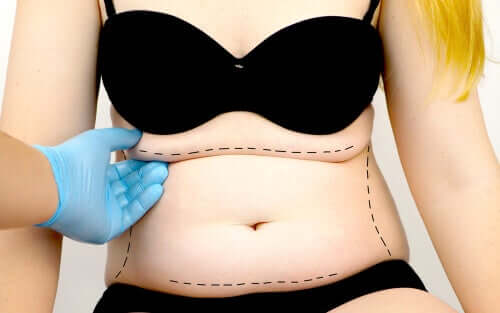Qu'est-ce que l'abdominoplastie ?