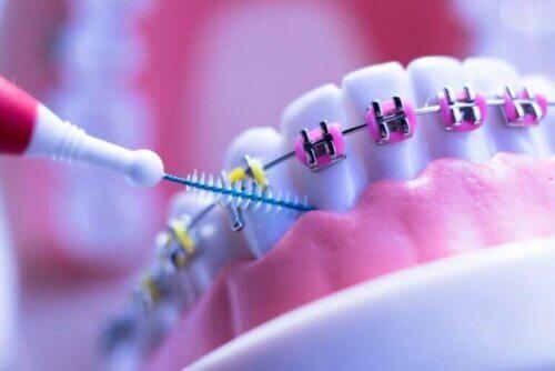 8 soins que toute personne avec un appareil dentaire doit suivre